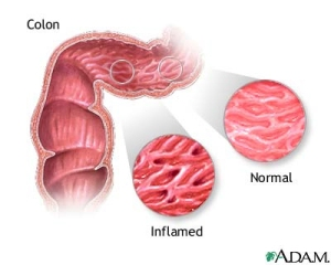 Healthy and Inflamed Gut
